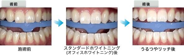 外科 ホワイトニング 美容 湘南 有名読モが体験♡「プレミアムホワイトニング」で輝く白い歯に【湘南美容歯科 新宿院】