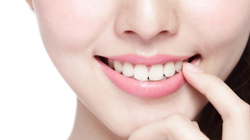出っ歯の矯正は痛いもの?