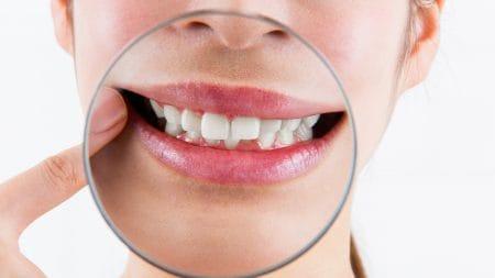 出っ歯の治療は前歯だけ矯正することはできる?