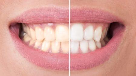 すきっ歯はオールセラミックで治せるの?