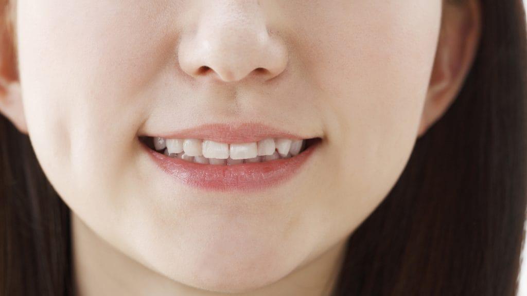 受け口って差し歯で治せるの?