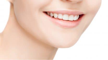 審美歯科のマニキュアって何?