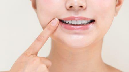 歯列矯正をすると受け口は変化するの?