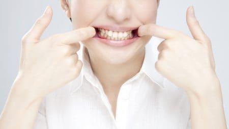 歯科矯正器具の一種、リンガルアーチってなに?
