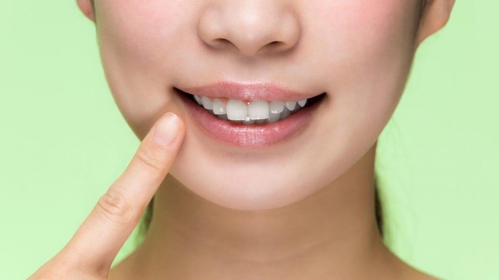 すきっ歯は親から子へ遺伝するの?