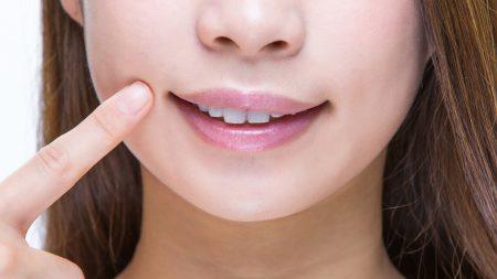 すきっ歯矯正の「コンポジットレジン」って何?