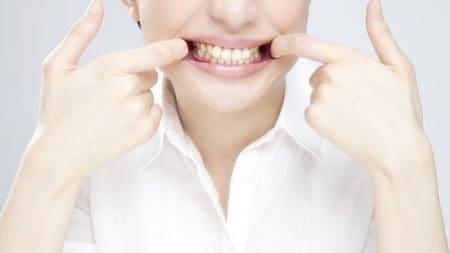 歯の隙間の黄ばみは何が原因で起きるの?