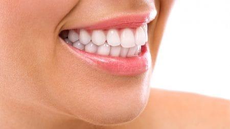 歯の付け根に隙間ができるのはどうして?