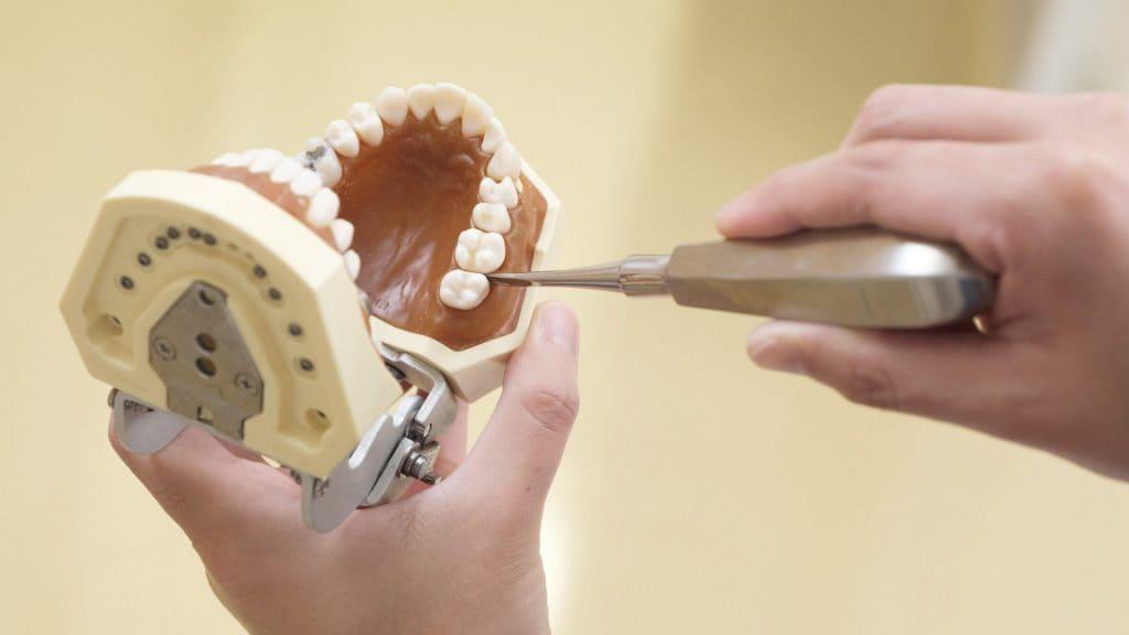 仮歯はどのようにお手入れすればいい?