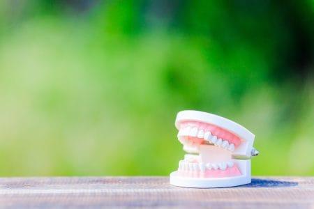 保険診療で歯科矯正ができる?
