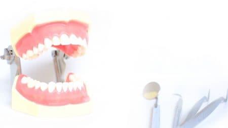 オールセラミックが虫歯になりにくいって本当?