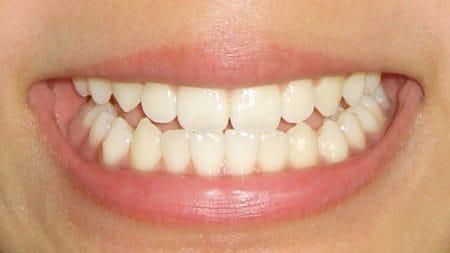 歯科矯正で行われるレベリングってなに?