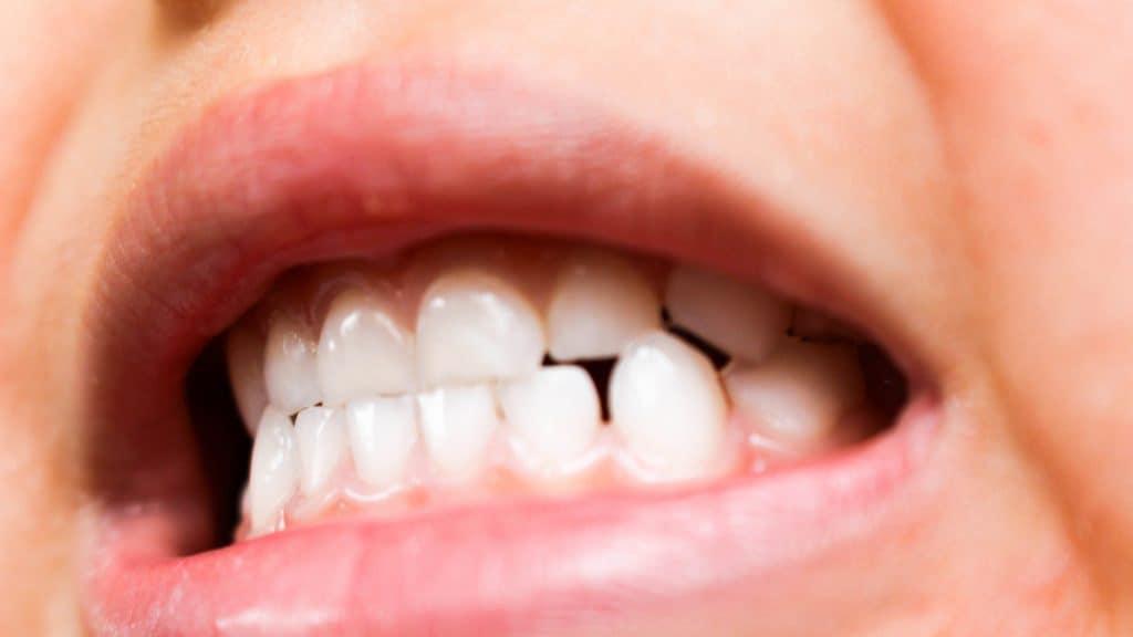 歯科矯正でのゴムかけは痛い?