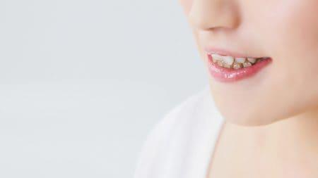 歯科矯正のレントゲン費用は別料金ですか?