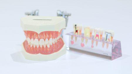 銀歯はひび割れすることがある?