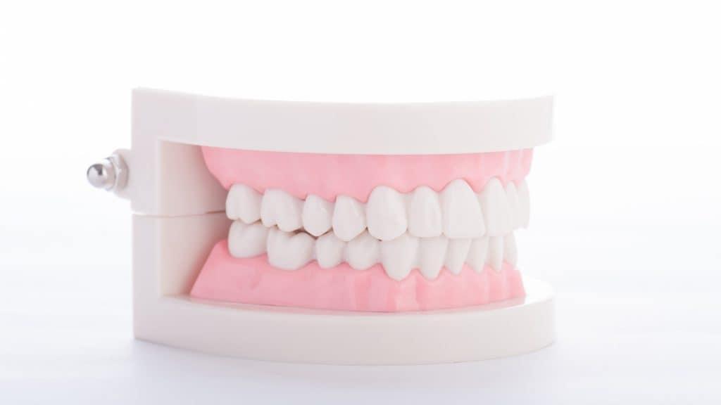 歯の黄ばみは女性の魅力を軽減させてしまう?