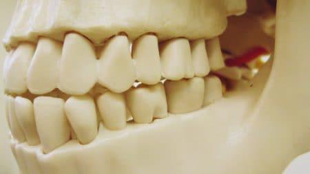 歯の黄ばみはお茶が原因ですか?