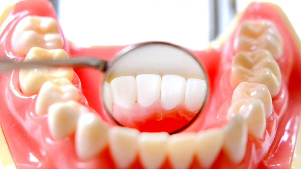 差し歯のレジンの黄ばみは改善できますか?