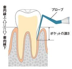 プローブで歯周ポケットの深さを測る
