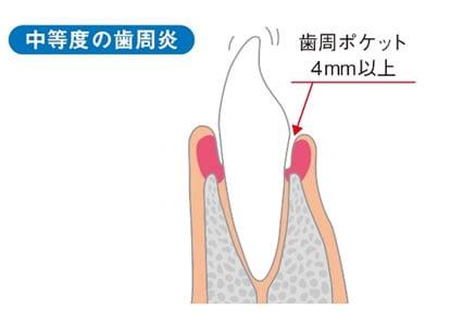 中度の歯周炎