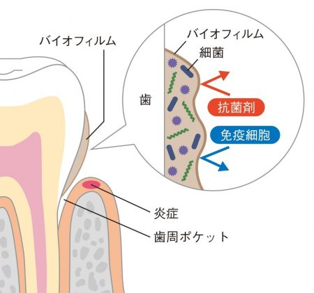 図1 バイオフィルムの状態になったプラークと歯周ポケット