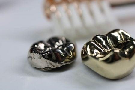 虫歯治療の銀歯の寿命はどれくらいなのか|セラミックとの違いも説明
