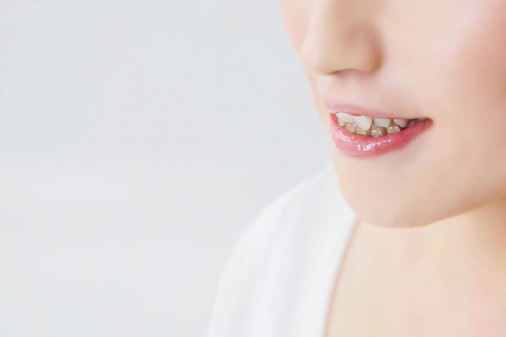 噛み合わせが悪い(不正咬合)と起きる悪影響|歯科で矯正治療がおすすめ