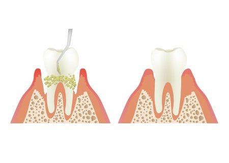 自分で爪楊枝を使った歯石取りは危険!黒い歯石についても紹介