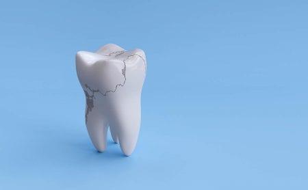 歯の根元が欠ける原因と治療方法 放置しておくと虫歯になる可能性も