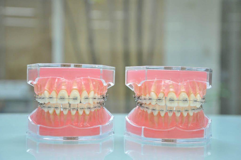 歯列矯正で歯が動きやすい人の特徴|大人でも短期間で治療が終わる場合とは
