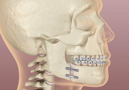 下顎のずれの治し方