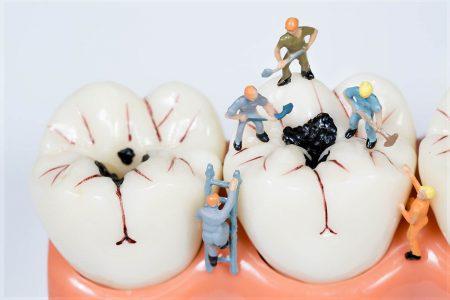 プラスチックの歯の詰め物とセラミックの違い|歯科治療の値段や保険も説明
