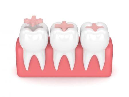 プラスチックの歯の詰め物の特徴