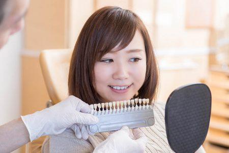 歯の詰め物・被せ物の種類