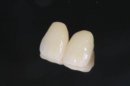 前歯の被せ物の種類