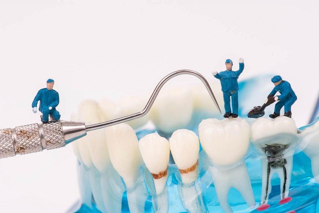 歯の詰め物(インレー)の素材の種類|金属・レジン・セラミックのメリットとデメリット