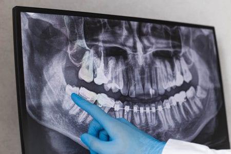 下の親知らずを歯科で抜歯!抜歯後の痛みや生活への影響は?