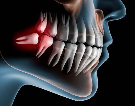 親知らず抜歯の治療費相場|費用の総額や内訳、高くなるケースなどを紹介