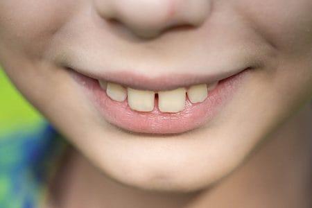 出っ歯は整形・矯正で治療が可能!受け口など口元の印象も変えられる