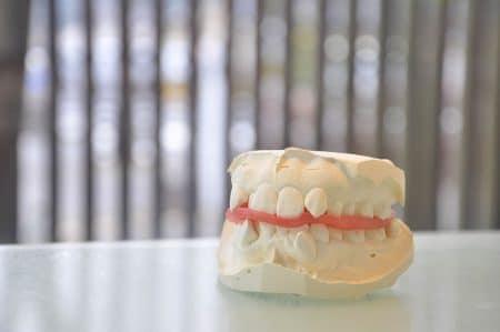 歯列矯正すべきな噛み合わせ・歯並びの状態
